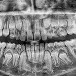 Как узнать коренной зуб или молочный