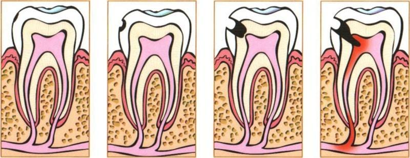 как выглядит кариес на зубах фото
