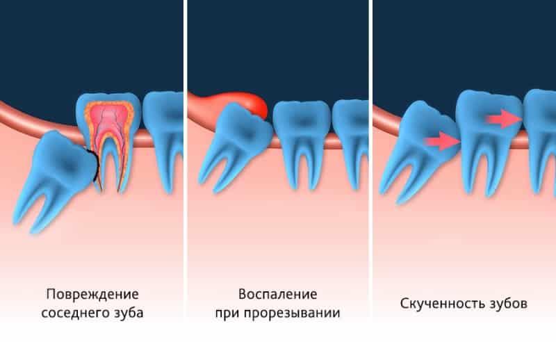 как выглядит зуб мудрости фото