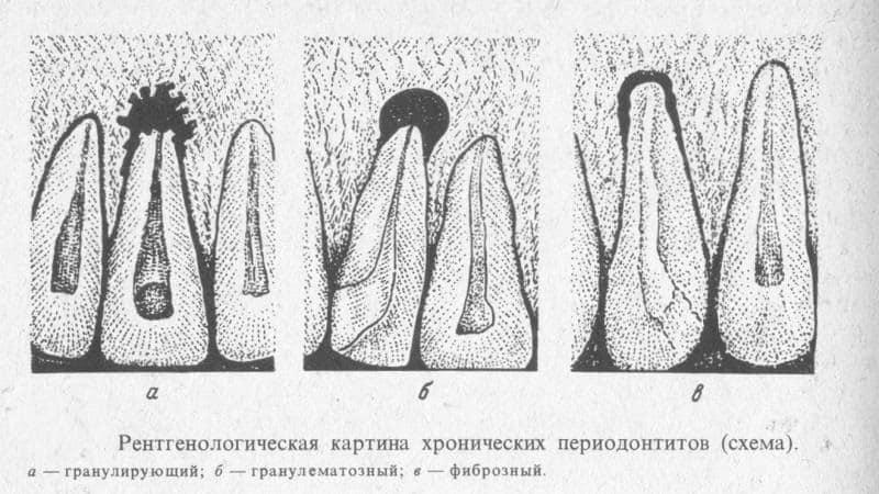 хронический периодонтит фото