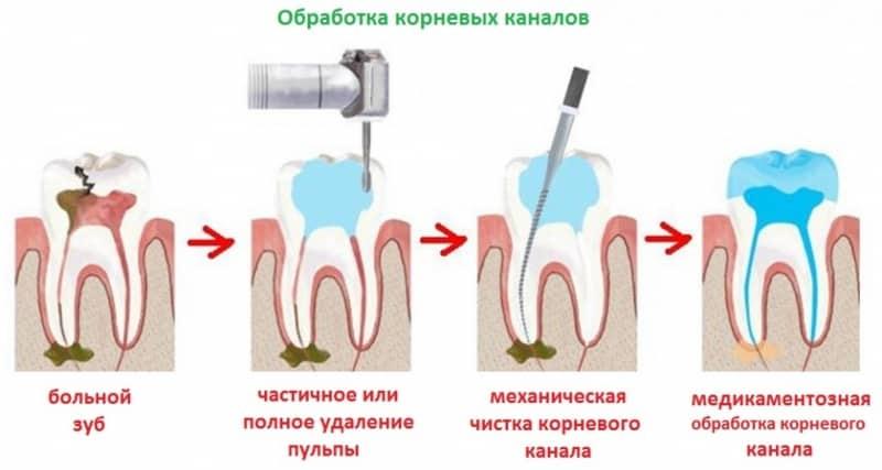 киста зуба симптомы последствия