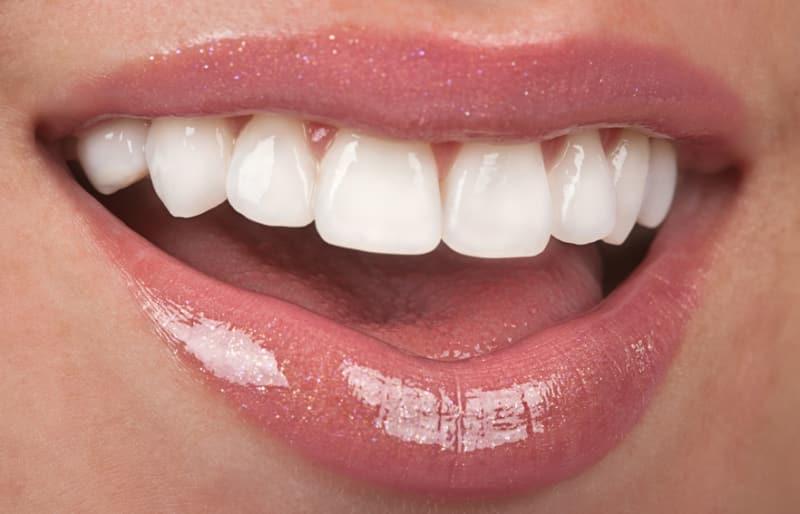 красивые улыбки и зубы фото