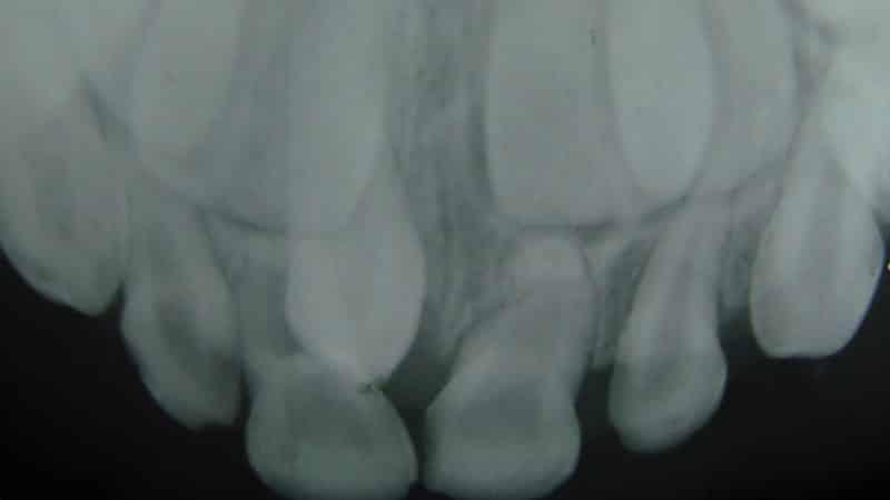 гипердонтия фото