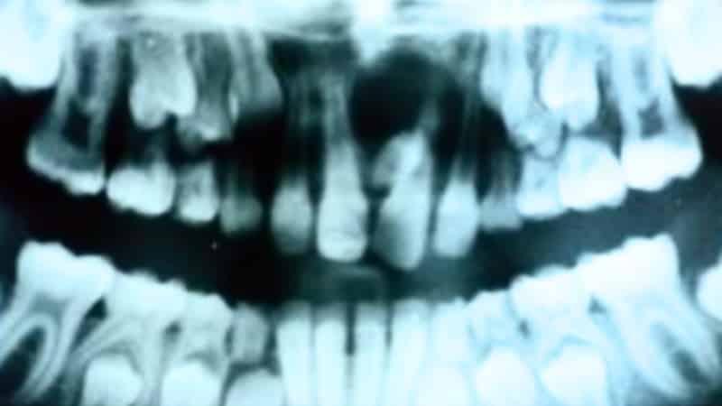 много зубов во рту болезнь фото