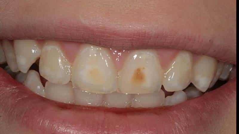 некариозные поражения зубов возникающие после прорезывания