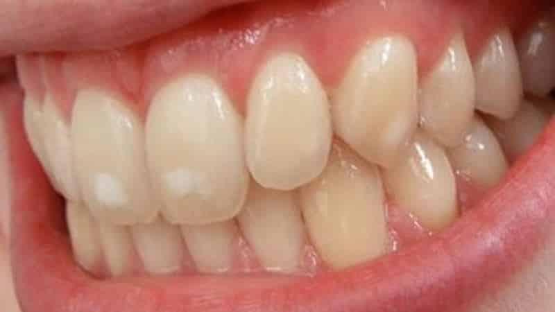 классификация некариозных поражений зубов