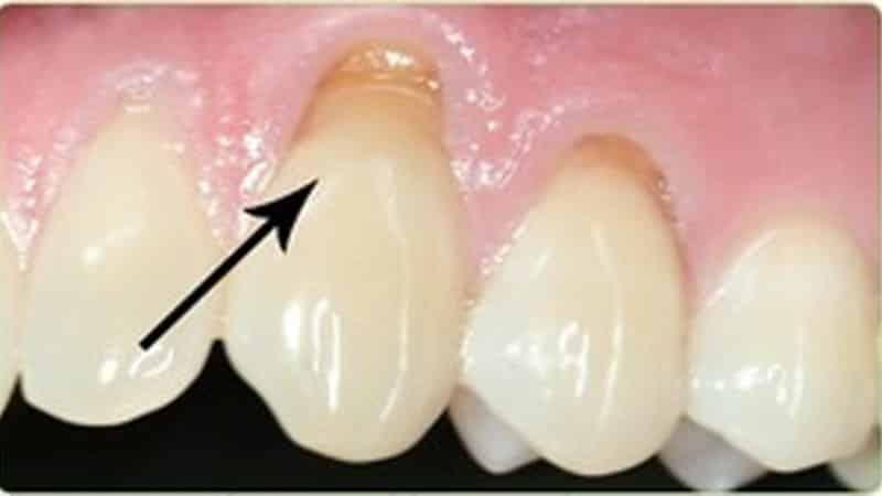 некариозные поражения твердых тканей зуба