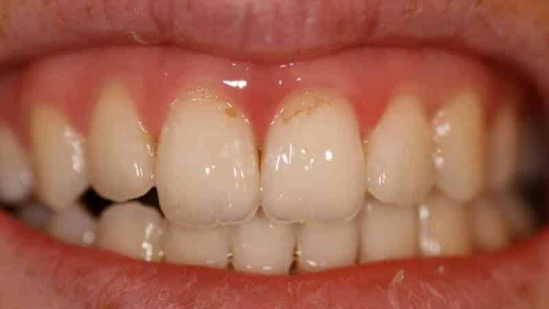 некариозные поражения зуба