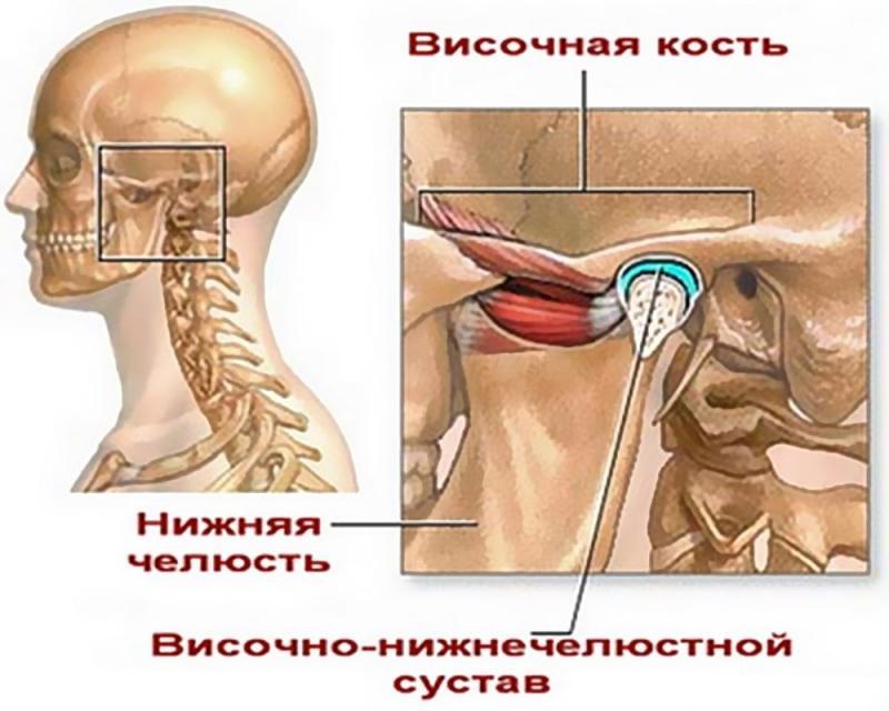 челюстные суставы болезни