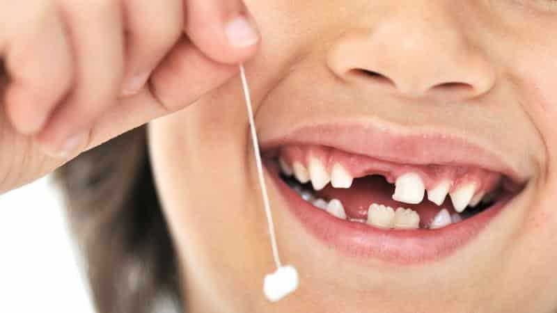 нужно ли вырывать молочные зубы если они шатаются