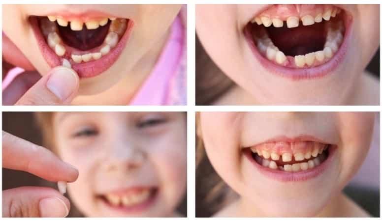 шатается молочный зуб у ребенка леченье