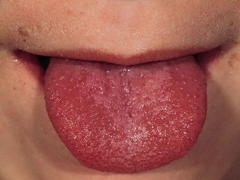 опух язык причины
