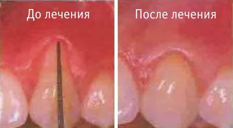 пародонтоз фото до и после