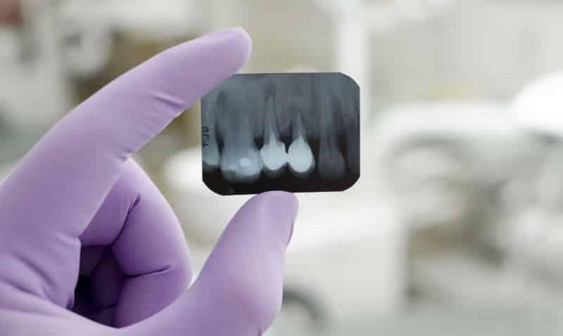 сделать рентген зуба фото