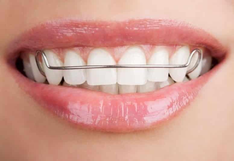 скобы для зубов фото