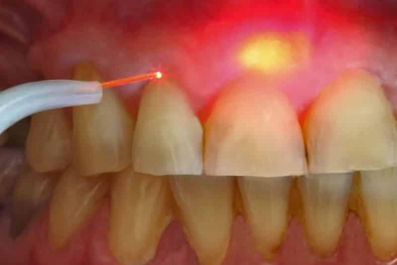 удаление кисты зуба лазером