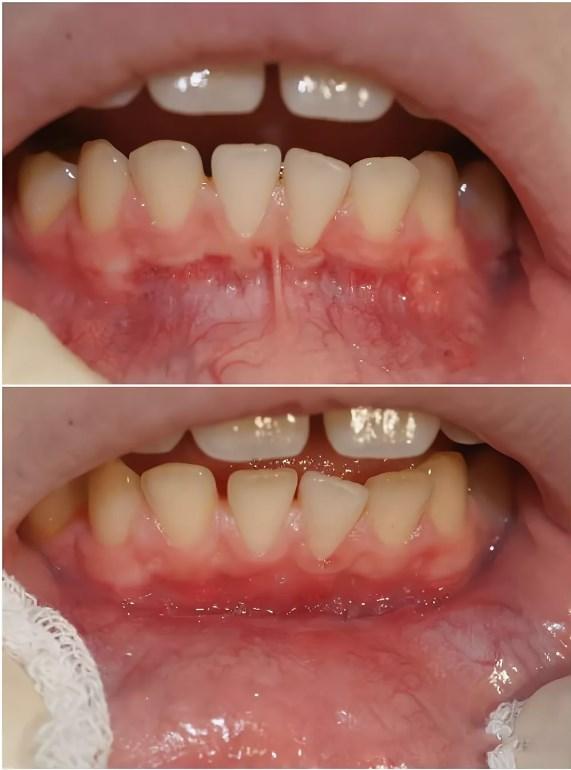 Уздечка нижней губы: пластика у взрослых и детей