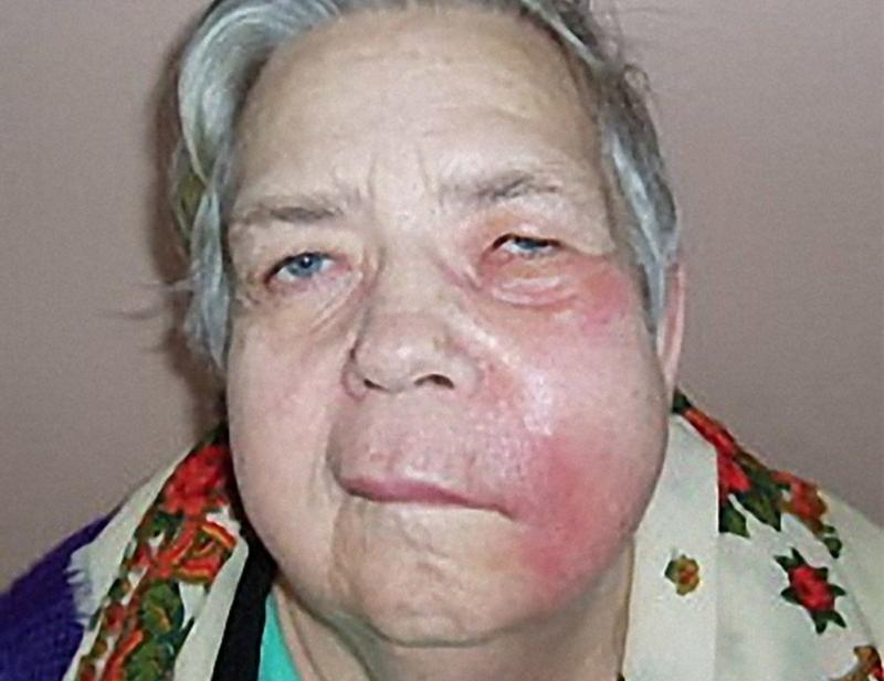 воспаление щеки изнутри