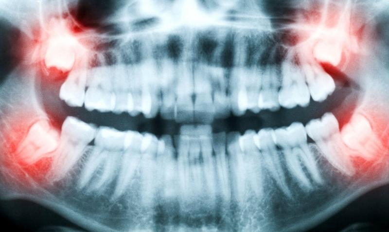 воспаление щеки с внутренней стороны
