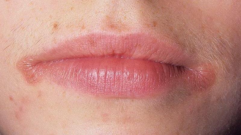 заеды в уголках рта у беременных причины и лечение