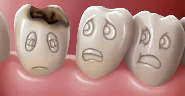 зубной кариес фото