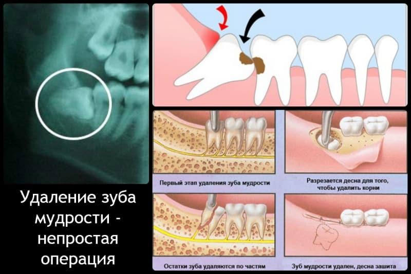 зубы мудрости фото