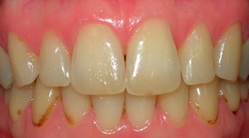 на зубах коричневые пятна
