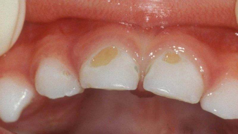 коричневое пятно на зубе