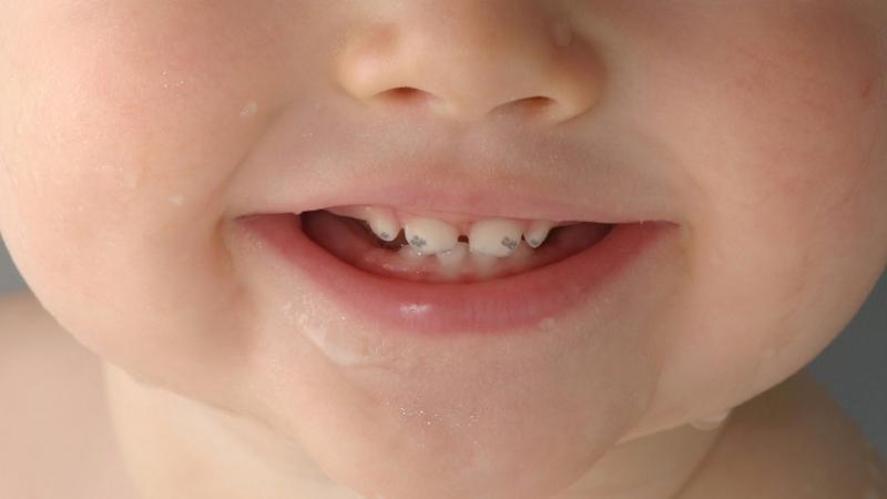 появились темные пятна на зубах