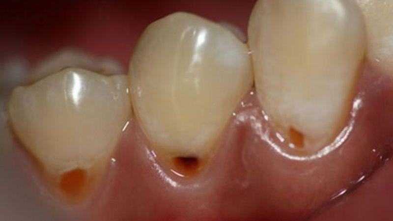 черное пятно на зубе