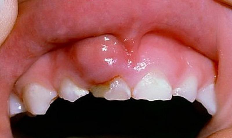 Флюс у детей молочных зубов лечение дома