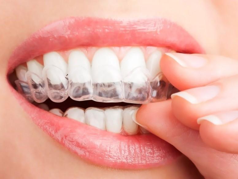эффективное отбеливание зубов в домашних условиях народными средствами