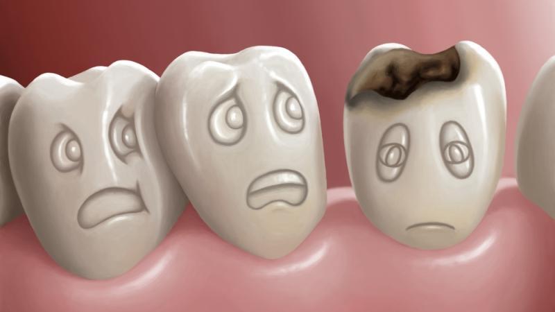 эндогенная кальций профилактика кариеса зубов у взрослых