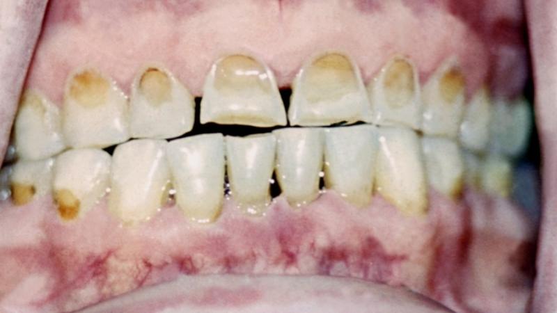 эрозия зубной эмали лечение
