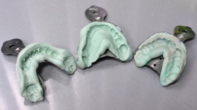 как делают зубные протезы видео