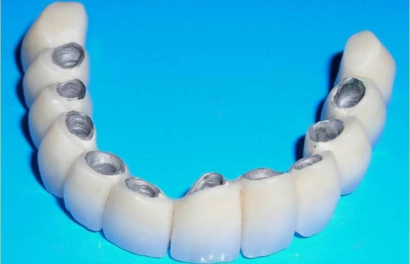 из чего делают зубные протезы