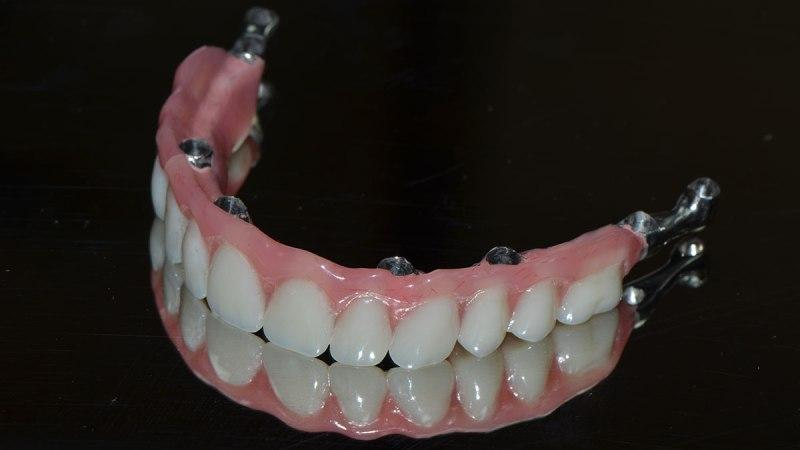 как самому сделать зубные протезы в домашних условиях