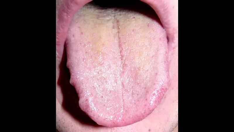 щетка для чистки языка фото