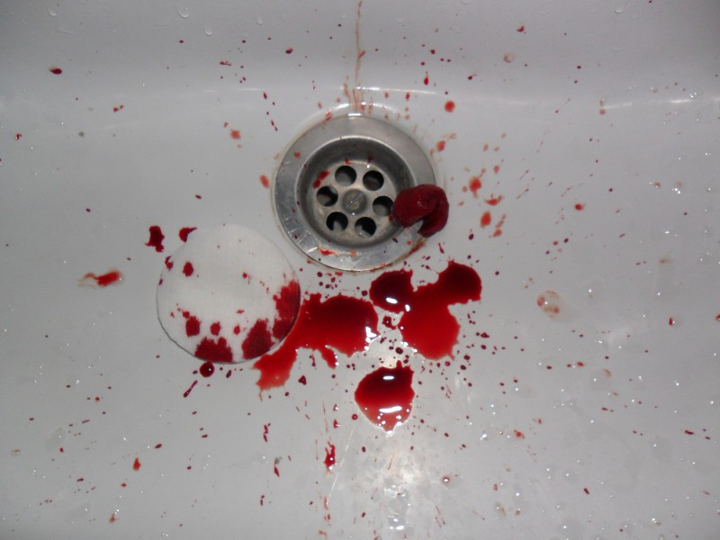 кровь во рту после сна