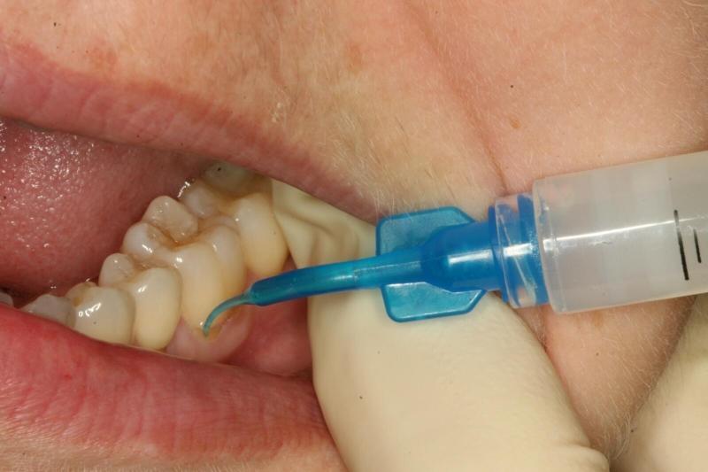 лечение зубов без сверления отзывы