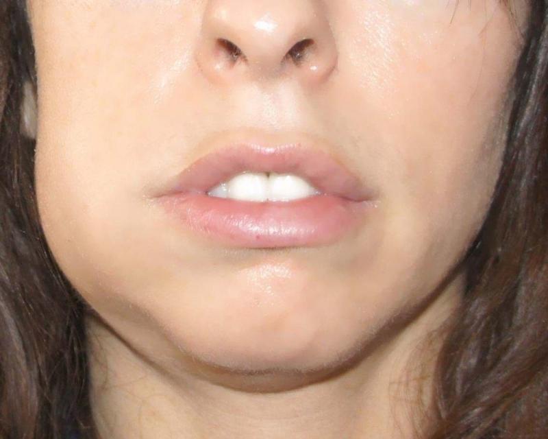 опухла щека от зуба как снять опухоль