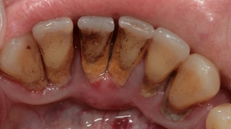 десна поднялась над зубом что делать