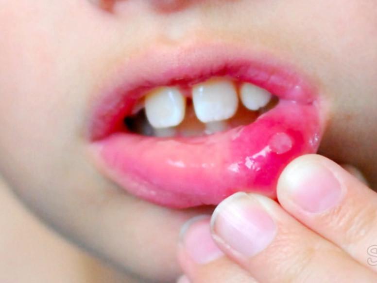 острый герпетический стоматит у детей лечение
