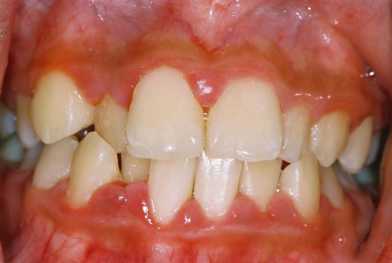 острый катаральный гингивит лечение
