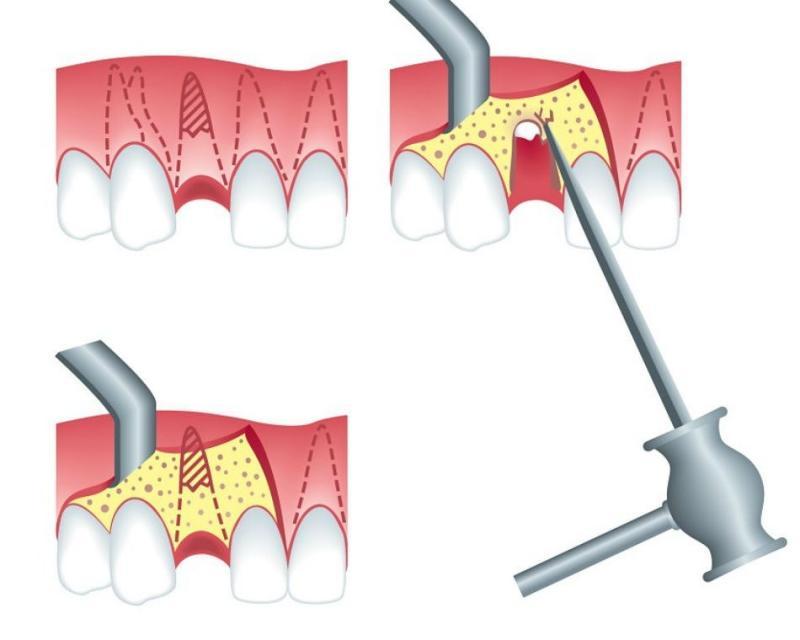 перелом корня зуба лечение_1