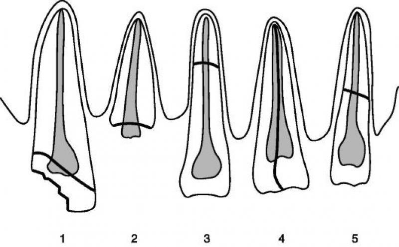 перелом зуба_1