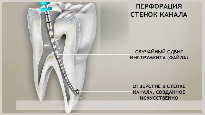 перфорация корня зуба лечение
