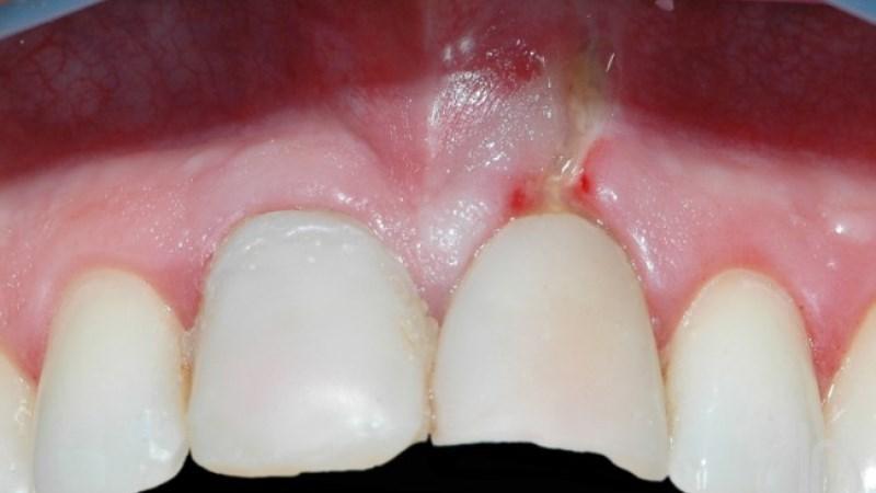 перфорация дна полости зуба