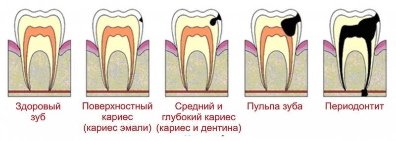 Если зуб погиб и пульпа основательно поражена, предпринимается удаление больного зуба