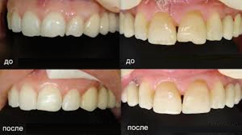 пломбирование передних зубов фото